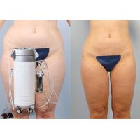 China Shaping Body Surgical Liposuction Machine Lipo Slim Machine For Chin / Outer Thighs on sale